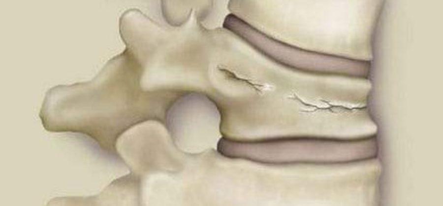 Почему болит спина после компрессионного перелома позвоночника?
