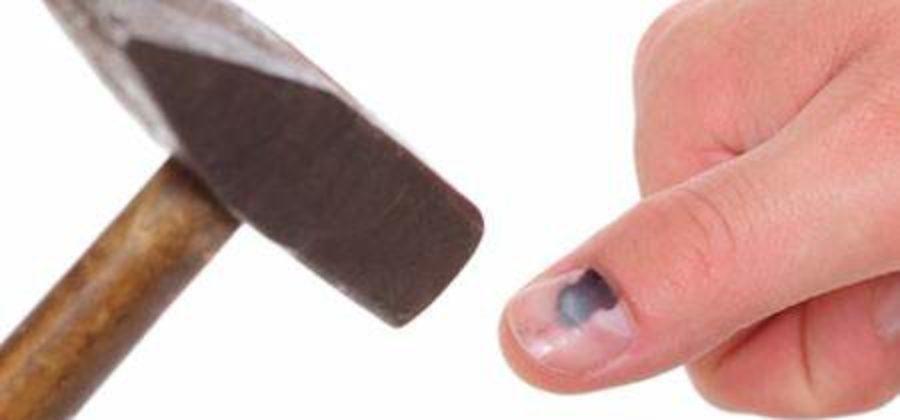 Что делать при сильном ушибе пальца у ребенка?