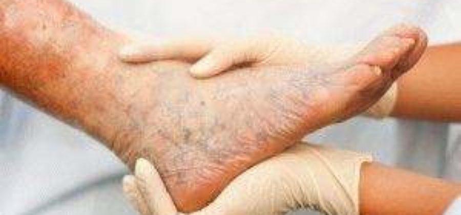 Тяжесть в ногах отеки лечение в домашних условиях