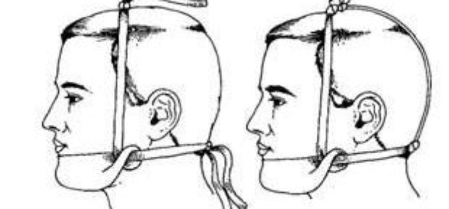 Большие пальцы рук при вправлении вывиха нижней челюсти врач устанавливает