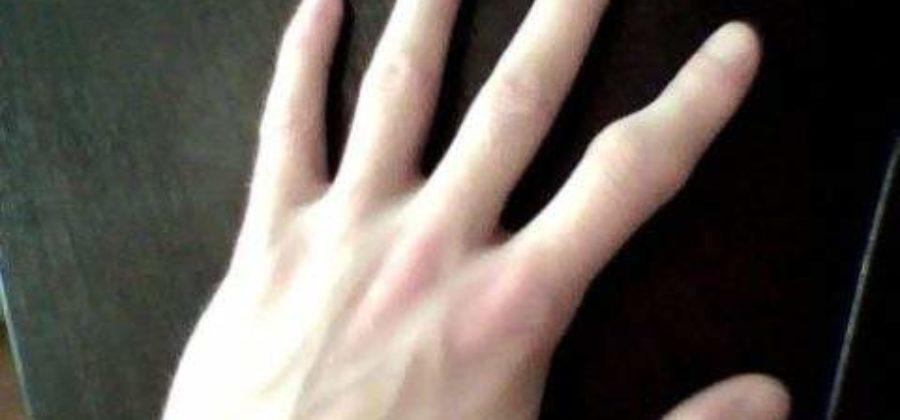 Что сделать чтоб перелом пальца зажил быстрей?