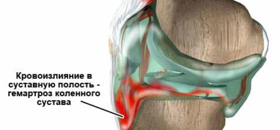 Скопление крови в коленном суставе после ушиба
