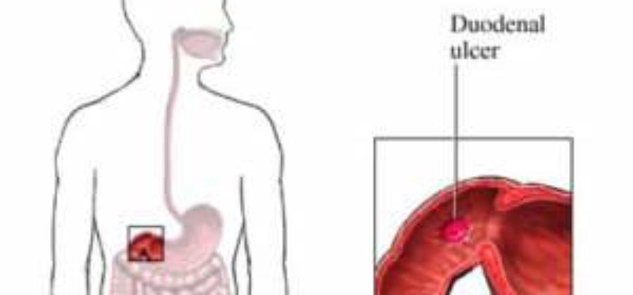 Какими продуктами можно снять отек поджелудочной железы?