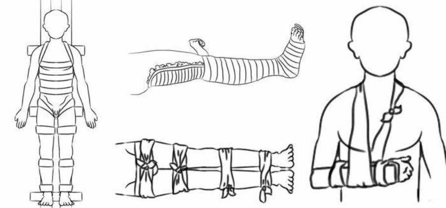 Переломы костей скелета признаки виды первая помощь